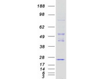 NAT8 (NM_003960) Human Recombinant Protein