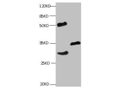 Cardiac Troponin I antibody