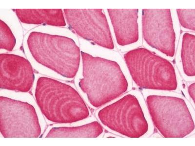 SLC29A2 antibody