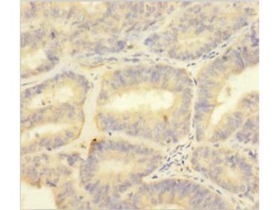 Protein S100A1 antibody