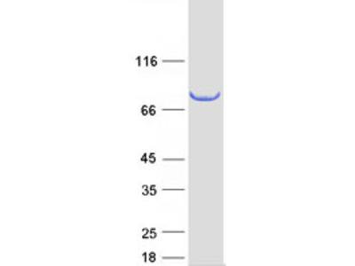 SCEL (NM_003843) Human Recombinant Protein