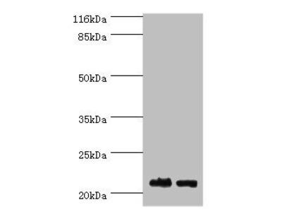 SOSS complex subunit B2 antibody