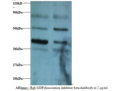 GDP dissociation inhibitor beta antibody