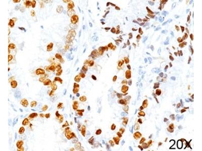 TTF1 antibody