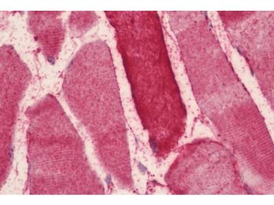 NOS2 antibody