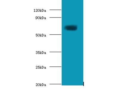Protein-glutamine gamma-glutamyltransferase 2 antibody