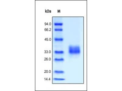 Human FOLR1 protein