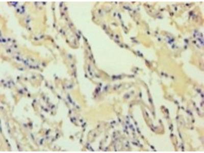 Alcohol dehydrogenase class 4 mu/sigma chain antibody