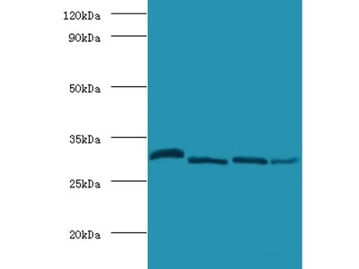 Carbonic anhydrase 2 antibody