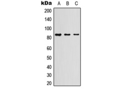 MPO / Myeloperoxidase Antibody