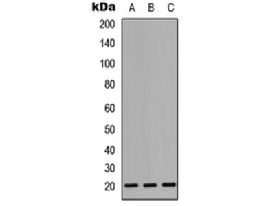 CD247 / CD3 Zeta Antibody