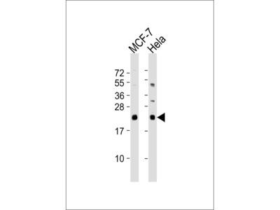 NRAS / N-ras Antibody