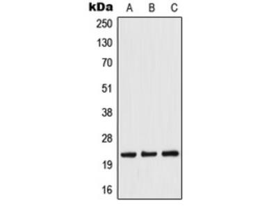 TWIST1 / TWIST Antibody