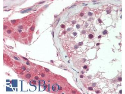 PLAT / TPA Antibody