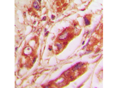 Vimentin Polyclonal Antibody