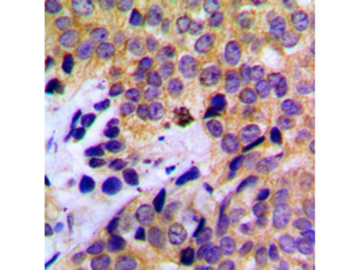 KRT8 / CK8 / Cytokeratin 8 Antibody