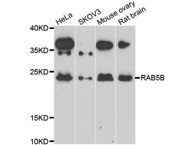 RAB5B Antibody
