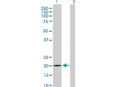 SPANXB1 Antibody