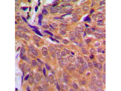 CHEK1 / CHK1 Antibody