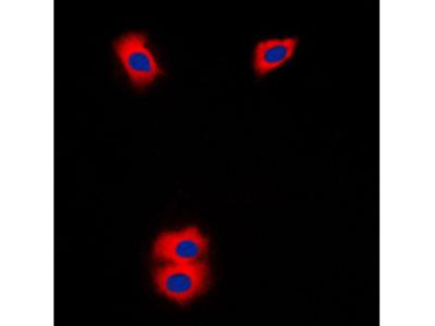 P450SCC / CYP11A1 Antibody