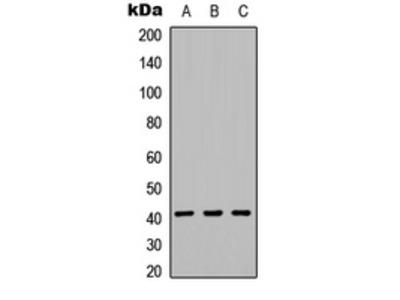 KIR2DL5A / KIR2DL5 Antibody