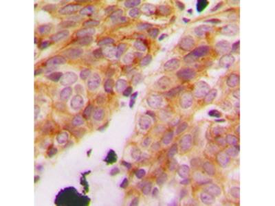 COL11A1 / Collagen XI Alpha 1 Antibody