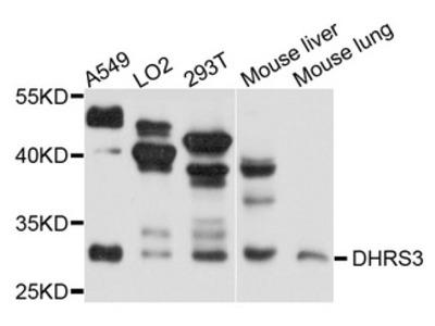 DHRS3 / SDR1 Antibody