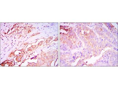 CEACAM5 / CD66e Monoclonal Antibody
