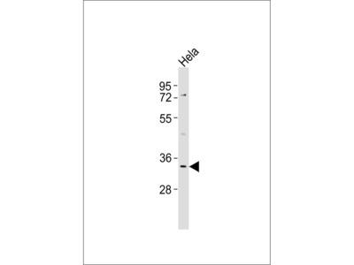 KIR2DS5 Antibody