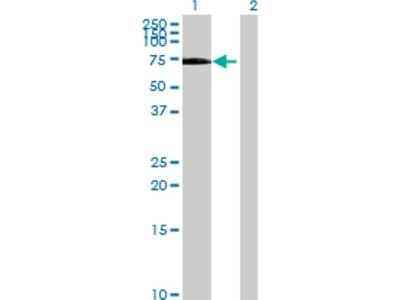 RABEP2 Overexpression Lysate (Denatured)