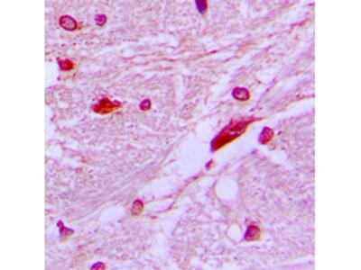 CUX1 / CASP Antibody