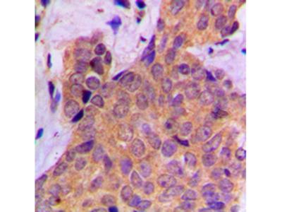 CTTN / Cortactin Antibody