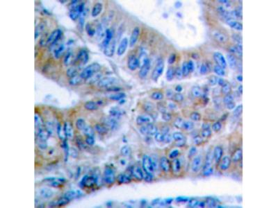 BCL2L1 / BCL-XL Antibody