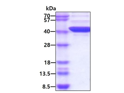 FIH-1 /HIF-1AN Recombinant Protein
