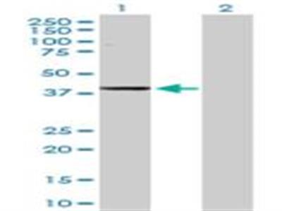 alcohol dehydrogenase 1C Antibody