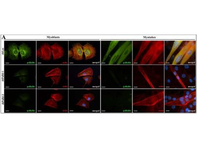 Palladin Antibody (1E6)