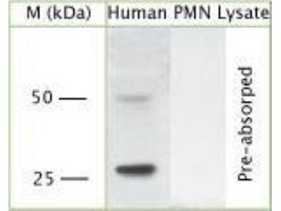 Rabbit Polyclonal Proteinase 3 / Myeloblastin / PRTN3 Antibody