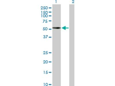 PKA C alpha Antibody