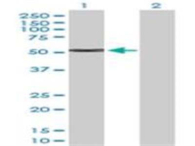 Cytokeratin 4 Antibody