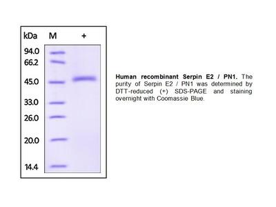 Human CellExp™ Serpin E2 / PN1, human recombinant