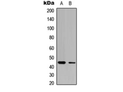 CLN5 antibody