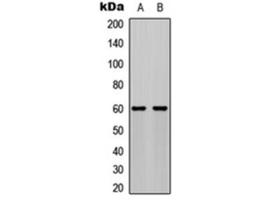 AKT (phospho-S473) antibody