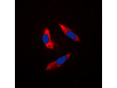 S6K1 antibody