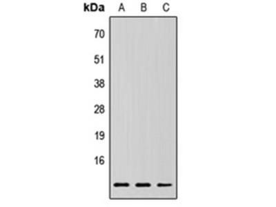 RPLP2 antibody