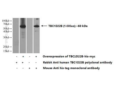 TBC1D22B Polyclonal Antibody