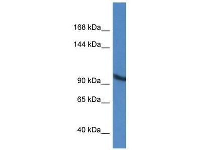 anti-Zinc Finger, MIZ-Type Containing 2 (ZMIZ2) (Middle Region) antibody
