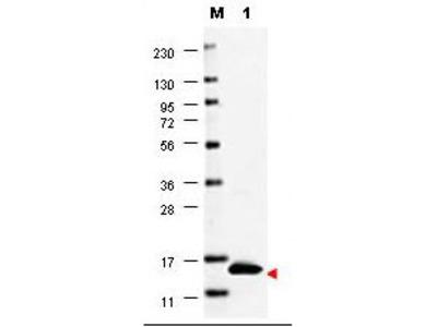 GM-CSF Antibody
