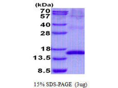 UPK2 (Uroplakin 2) protein