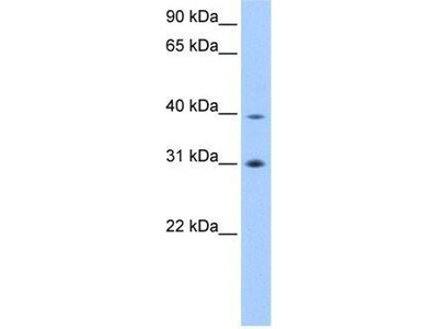 anti-Eukaryotic initiation factor 3 p40 subunit (eif3ha) antibody