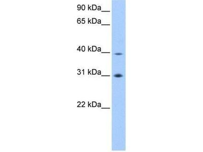 anti-Eukaryotic initiation factor 3 p40 subunit (eif3ha) antibody